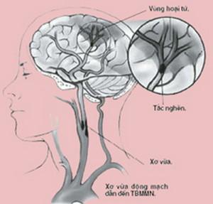bệnh rối loạn tuần hoàn não có nguy hiểm không