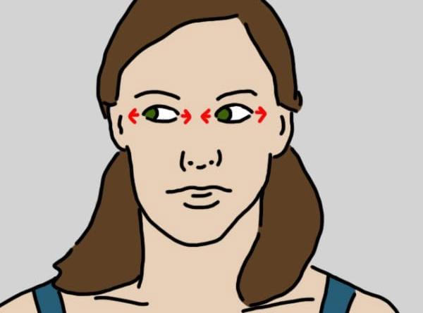 bệnh rối loạn tiền đình  Tập thể dục có phải là cách phòng và chữa bệnh rối loạn tiền đình