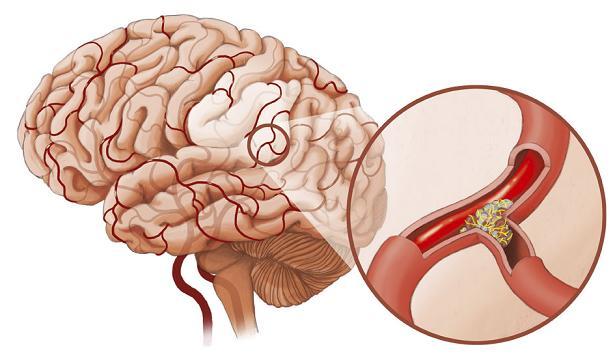 Nguy cơ nhồi máu não