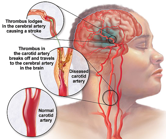 cơn đau đầu rối loạn tiền đình  Hoảng sợ với cơn đau đầu rối loạn tiền đình