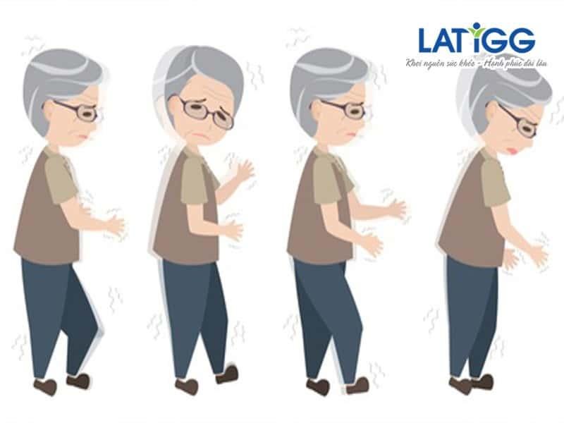 mat-thang-bang-bieu-hien-cua-roi-loan-tien-dinh Các biểu hiện triệu chứng của rối loạn tiền đình và cách hỗ trợ chữa trị