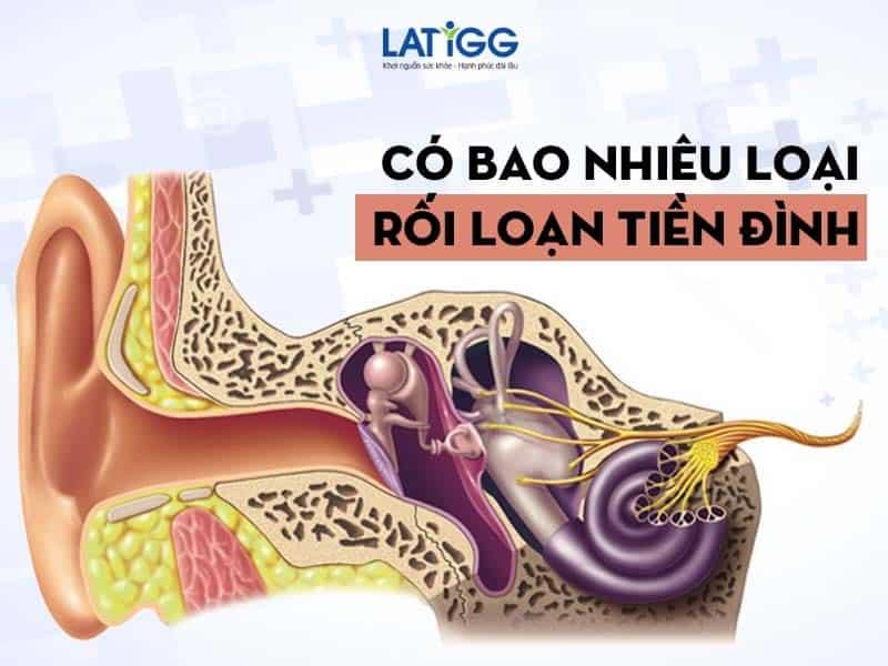roi loan tien dinh ban thuong gap