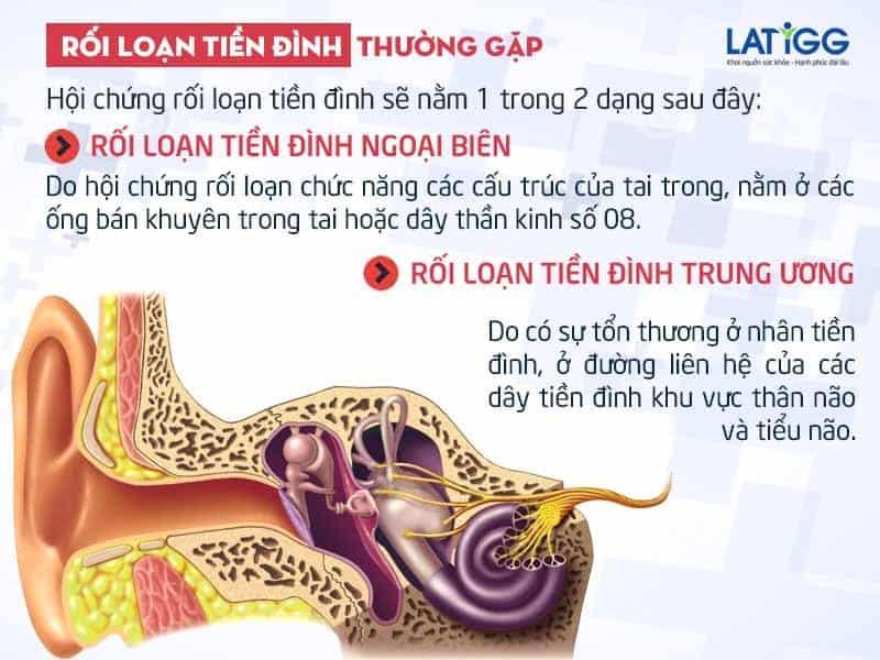 roi loan tien dinh thuong gap