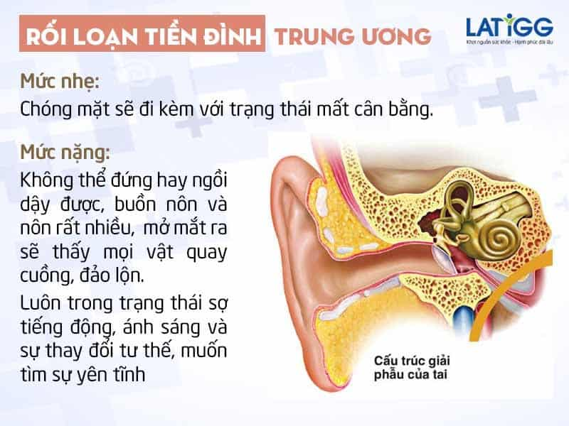 roi loan tien dinh trung uong