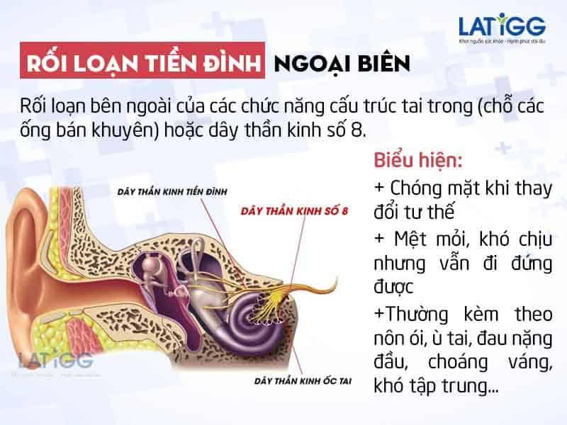 roi-loan-tien-dinh-ngoai-bien